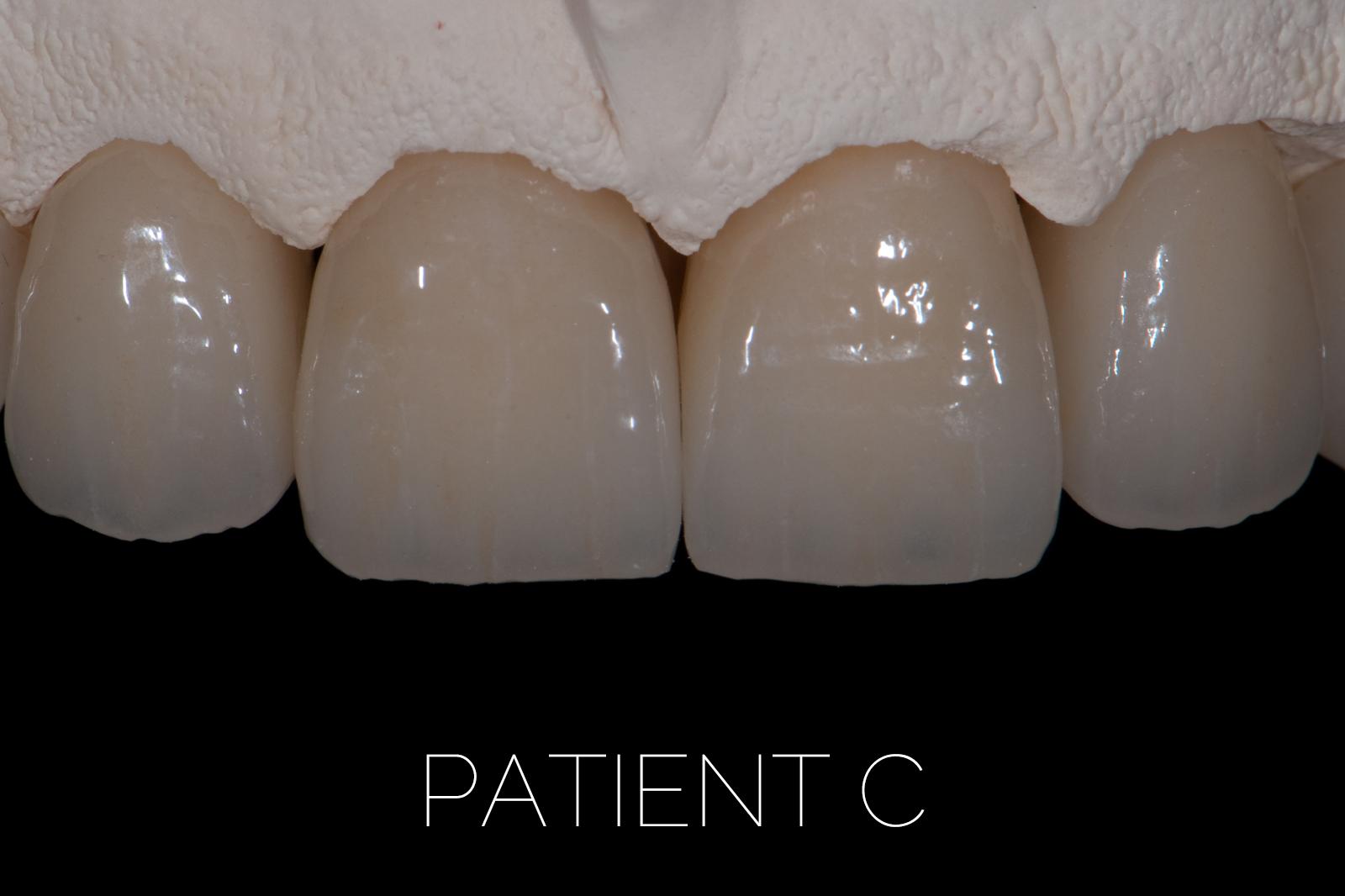 Patient C