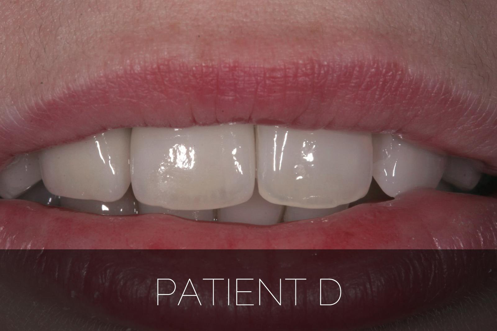 Patient D