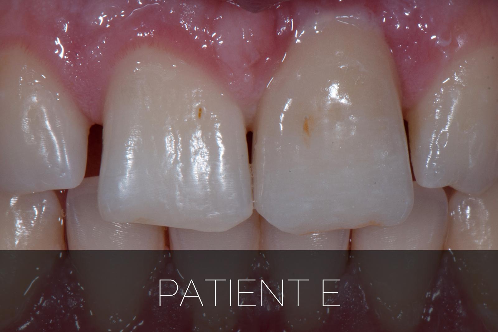 Patient E