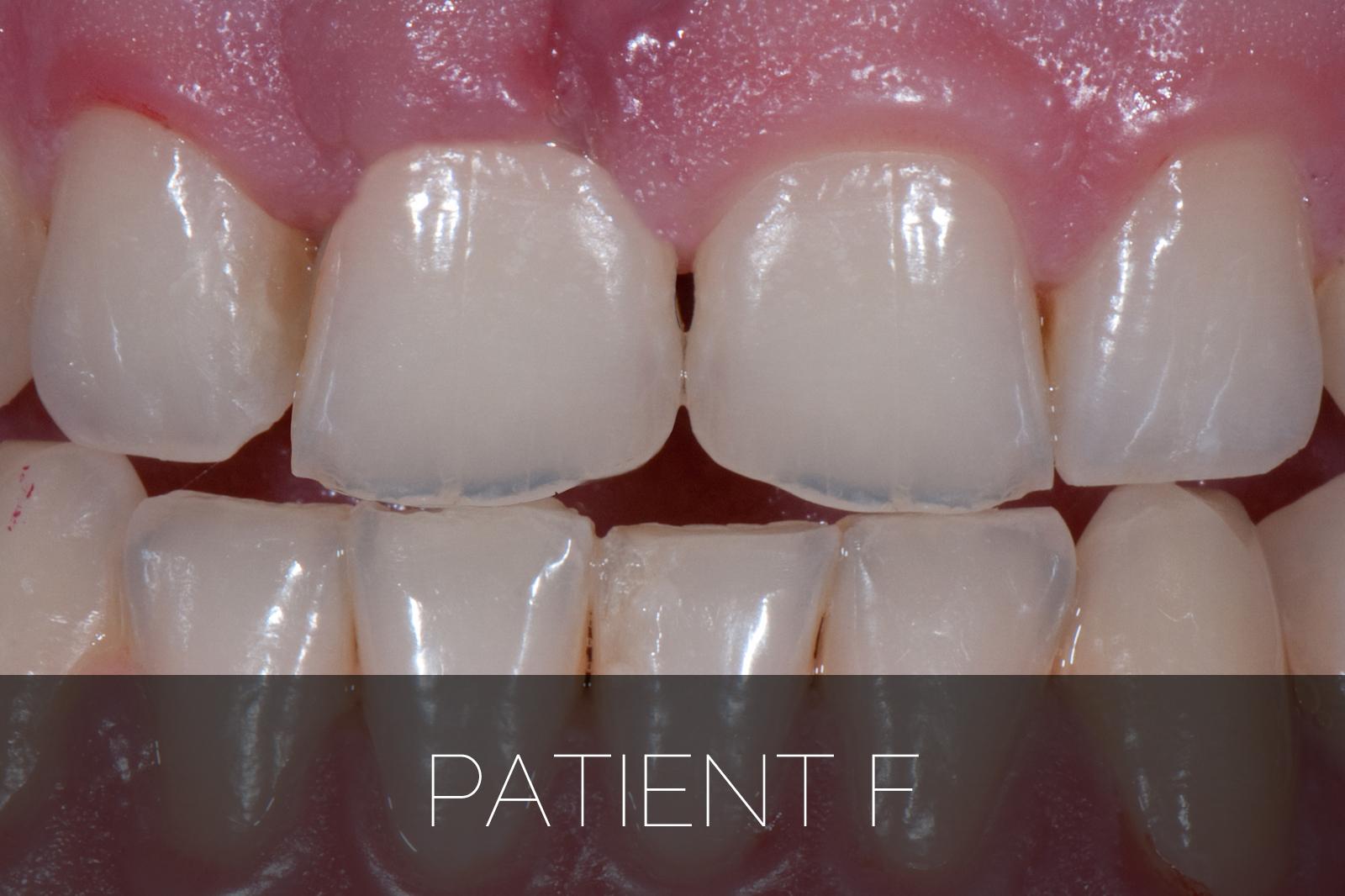 Patient F