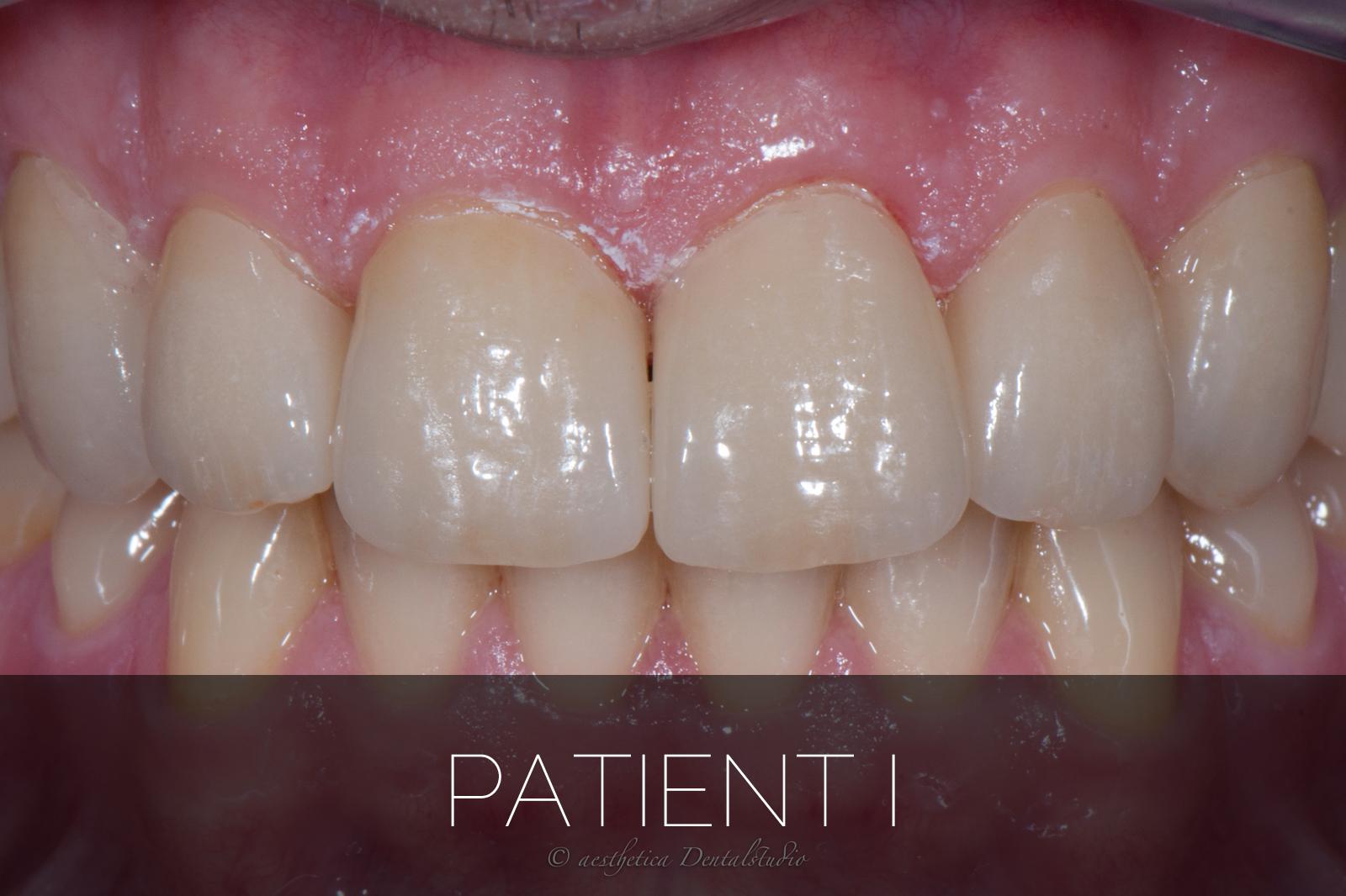 Patient I
