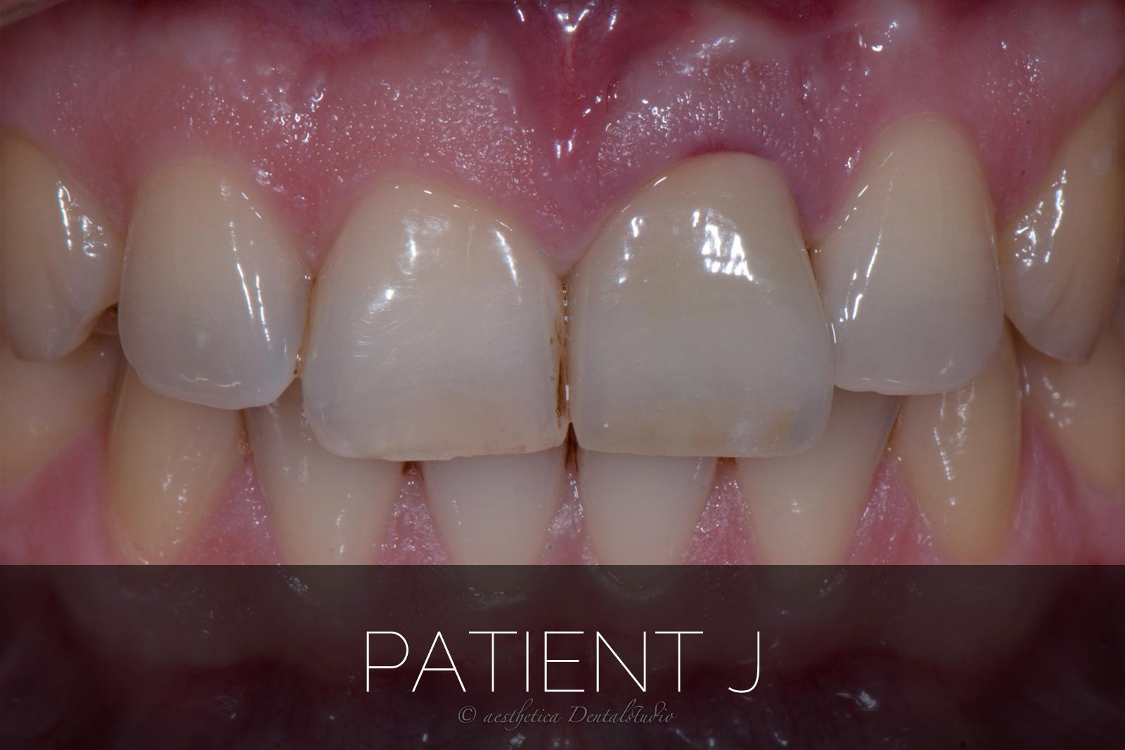 Patient J